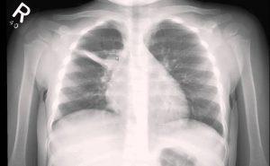 pediatric x ray